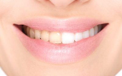 Before and after teeth whitening at King Street Dental Practice, Odiham